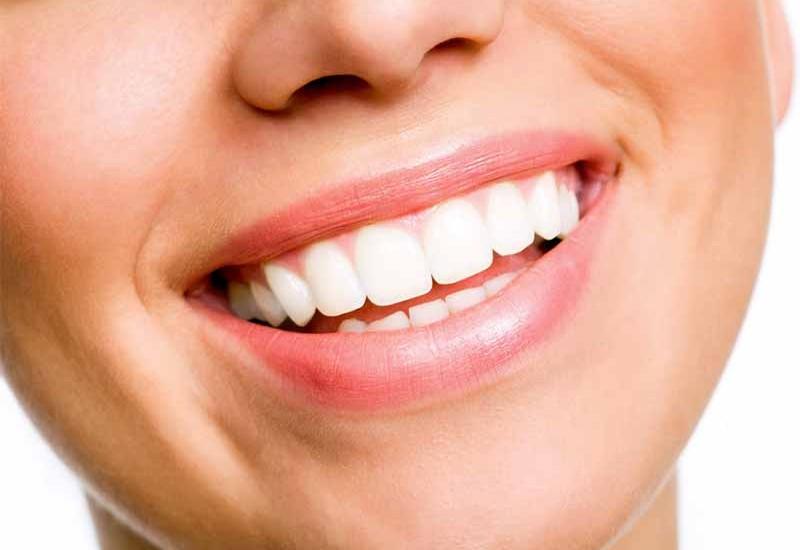 Patologie parodontali